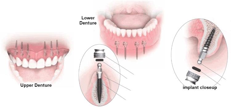 mini implant